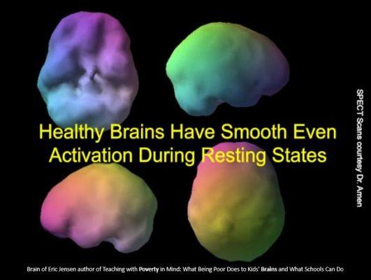 brain unstressed